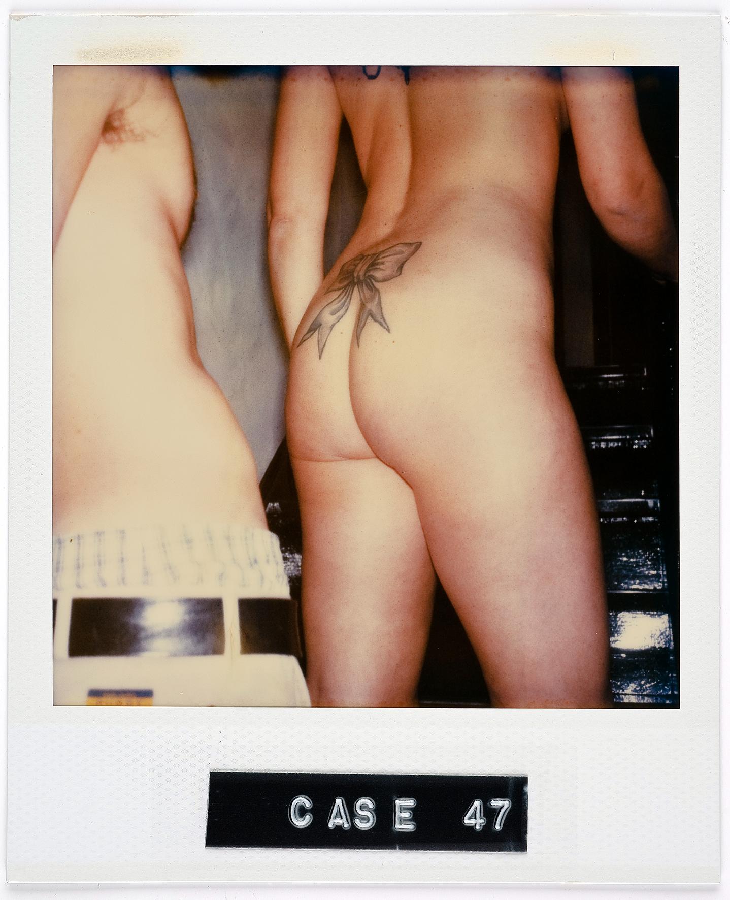 Case 47